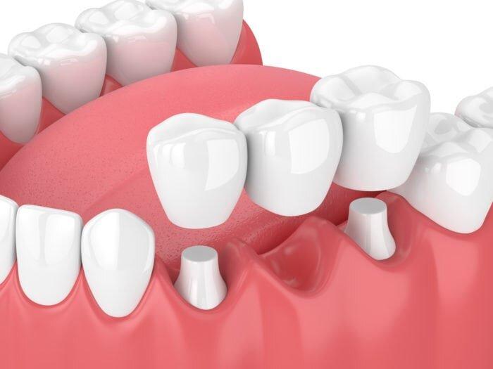 dentist mississauga